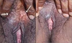 sipilis pada wanita